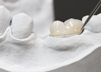 A metal-free dental crown restoration